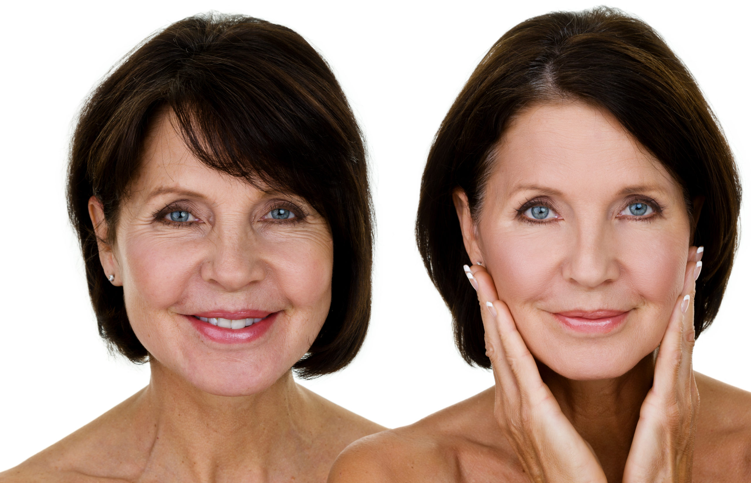 Mature woman before and after pictures.